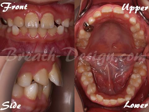 歯列不正の原因