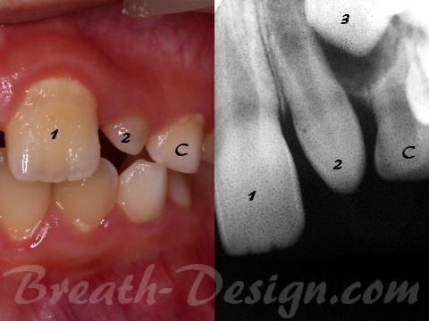 矮小歯 側切歯