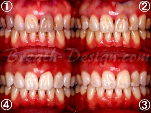 変色歯 根管治療 インターナルブリーチ ホワイトニング