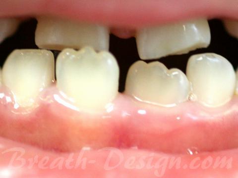 乳歯 永久歯