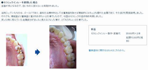 アクアデンタル 審美歯科症例 セラミックインレー