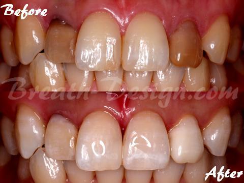 インターナルブリーチ ホワイトニング 変色歯