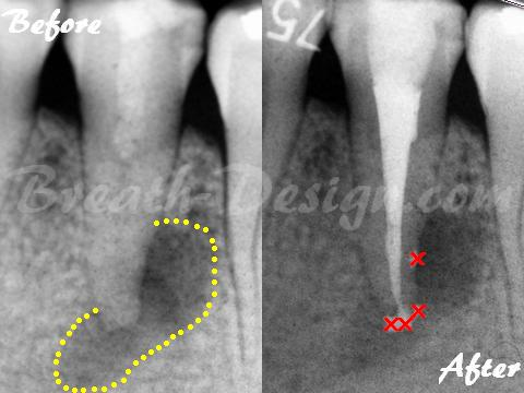 感染根管治療 歯内療法 側枝 生切