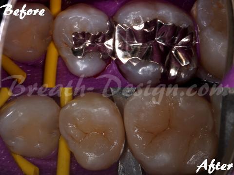 銀歯を白い歯に レジン治療 ダイレクトセラミック