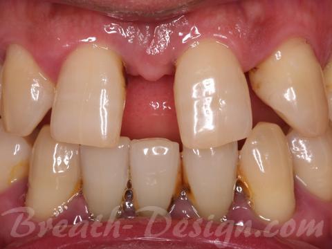 すきっ歯 レジン治療 術前