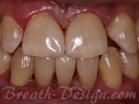 すきっ歯 レジン治療 術後