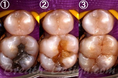 ダイレクトボンディング コンポジットレジン充填 上顎第一大臼歯