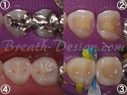 レジン治療 銀歯 ダイレクトボンディング