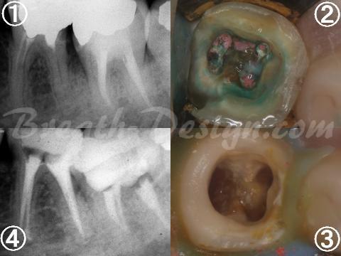 感染根管治療 歯内療法 不良根管充填
