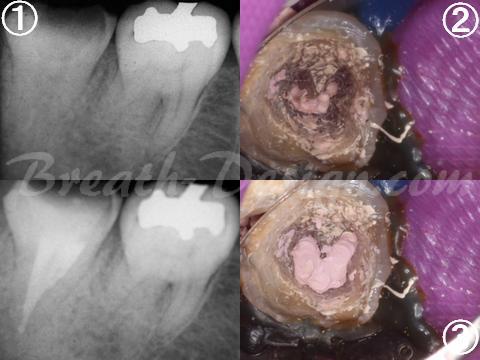 感染根管治療 歯内療法 樋状根 C-Shape