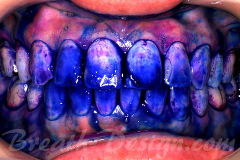 PMTC クリーニング 歯垢染色