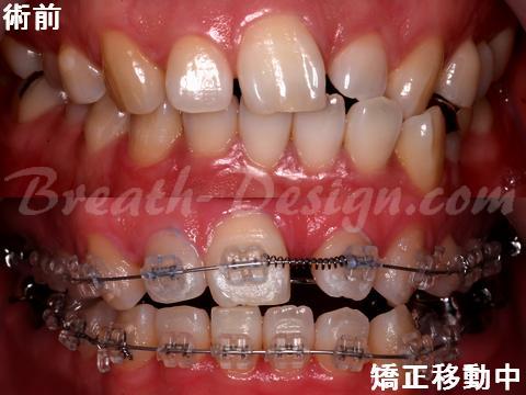 部分矯正 中切歯欠損