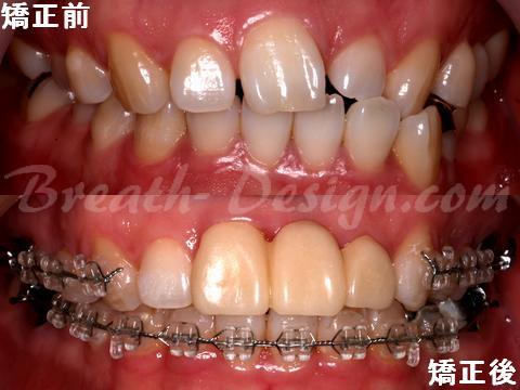 歯列矯正治療 中切歯欠損