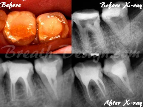 感染根管治療 歯内療法 下顎大臼歯 4根管