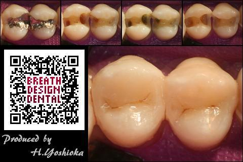 Hybrid-Direct (class 2 - posterior composite resin restorations) ハイブリッド インレー ダイレクト
