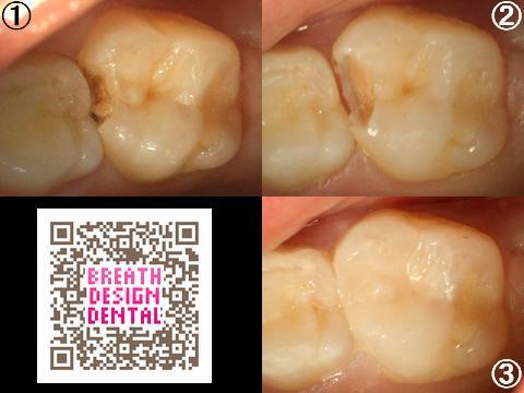 乳歯 第二乳臼歯 レジン治療 レジン修復