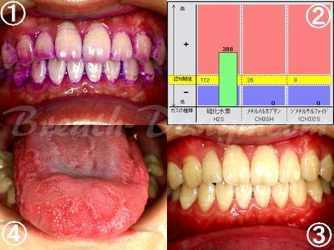 生理的口臭症 PMTC クリーニング 舌診