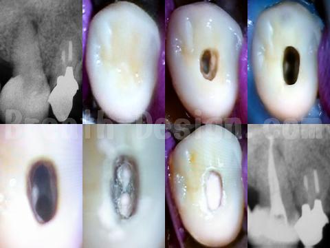 感染根管治療 右上第二小臼歯 エンド 歯内療法
