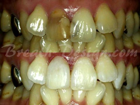 レジン治療 変色歯 インターナルブリーチ ダイレクト