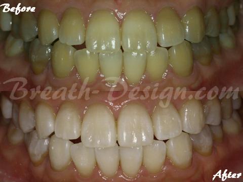 テトラサイクリン変色歯 ホワイトニング