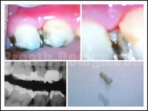 歯ぐきの違和感