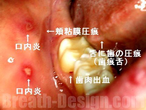 栄養素 歯痕舌 頬粘膜圧痕 口内炎