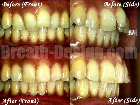 前歯 部分矯正