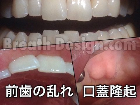 大人 歯並び 矯正 口蓋隆起