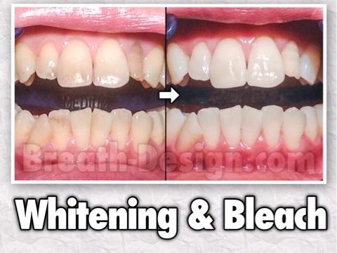 ホワイトニング 変色歯 茶色い歯
