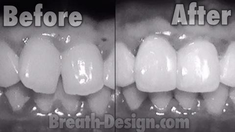 歯の隙間 すきま レジン治療