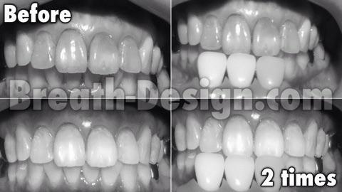 変色歯 茶色い歯 失活歯