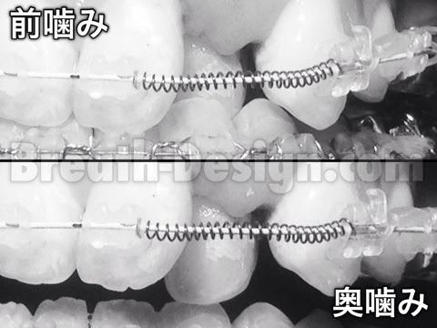 歯並び 歯列矯正 矯正歯科 矯正治療