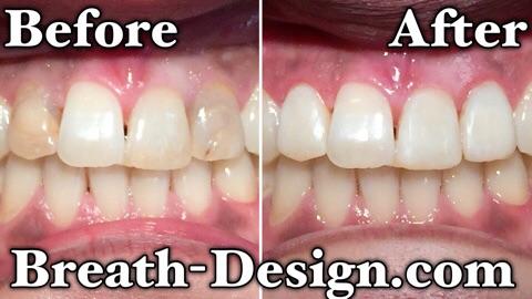 ダイレクトベニア 変色歯