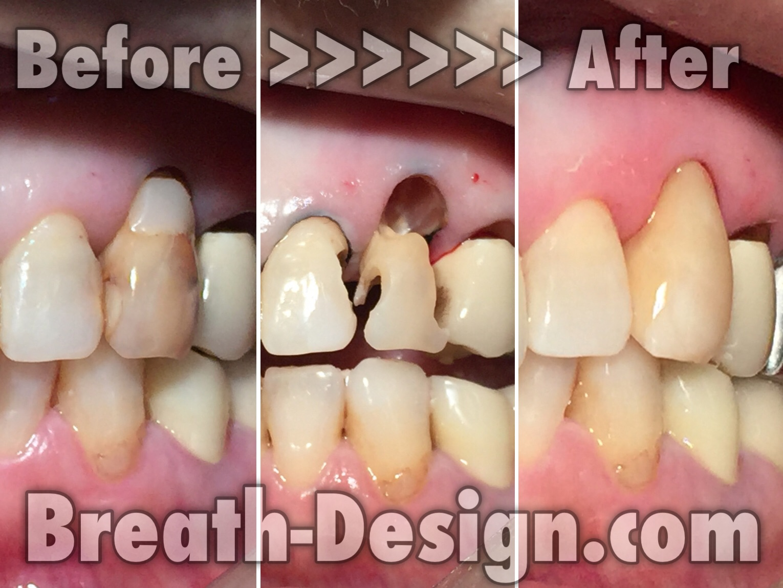 ムシ歯 レジン治療