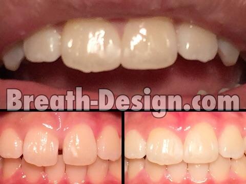 すきっ歯 レジン 治療 修復