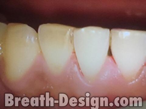 歯の着色 くすみ 歯肉出血