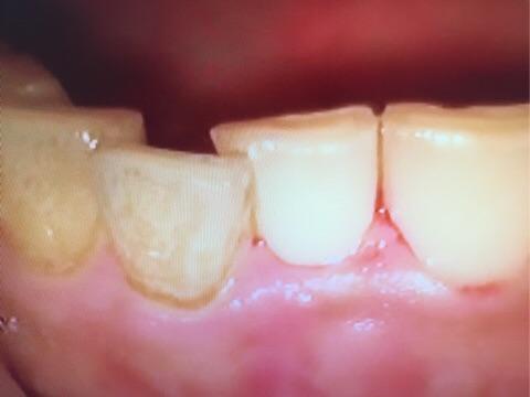 歯のくすみ 歯の着色 歯肉出血 歯肉炎