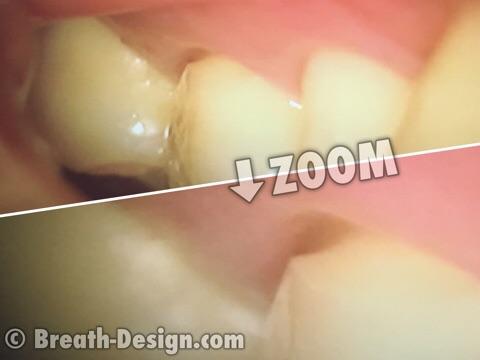 WSD 楔状欠損 歯磨き 座屈 圧縮破砕