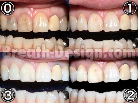 ホワイトニング 黒い歯 むし歯