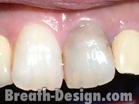 変色歯 新潟 治療