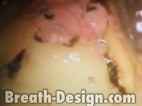変色歯 原因 歯髄