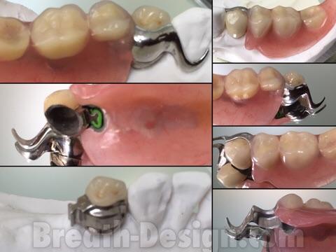 ミリング アタッチメント 義歯