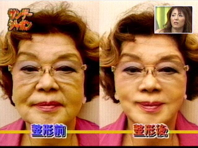 サッチー20歳若返り整形手術「手術前→手術後」