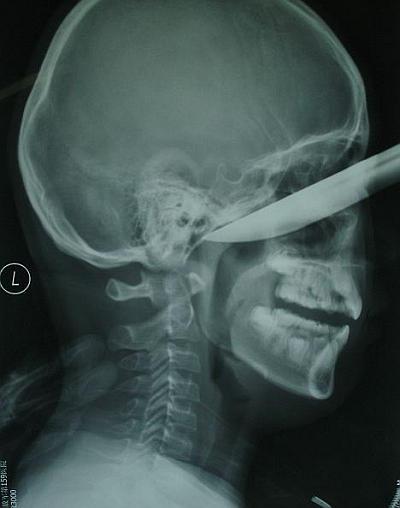 20cmのナイフが顔面に刺さった少年