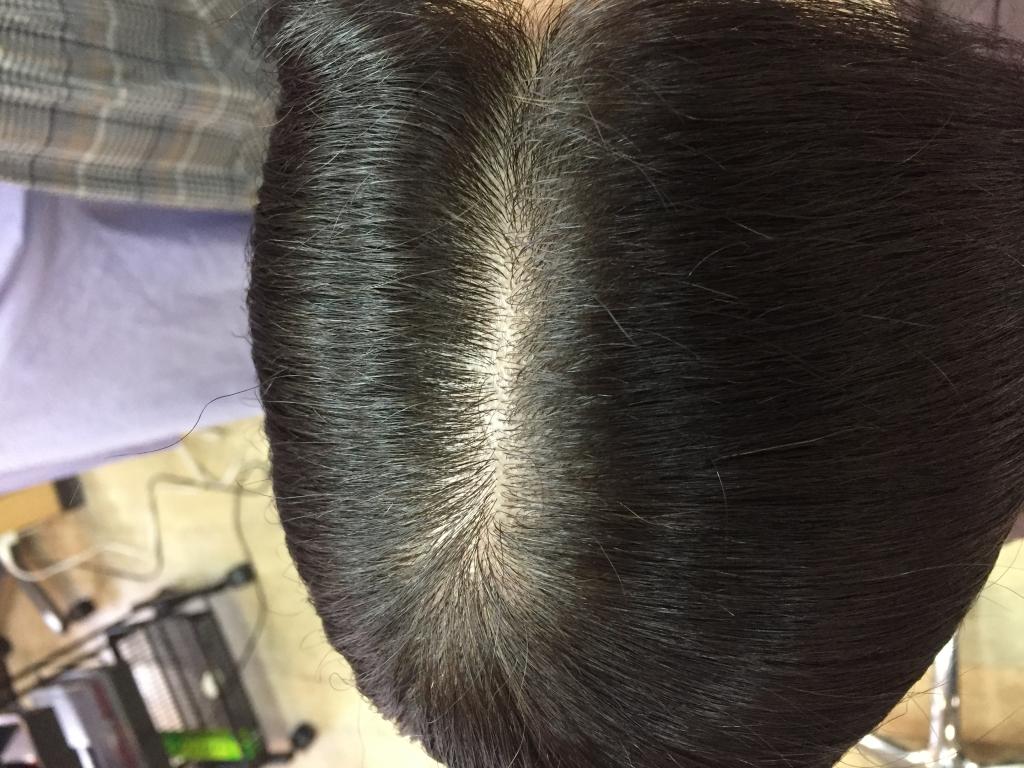 ノンジアミンヘアカラー ジアミンアレルギー ヘアカラーかぶれ 白髪染めでかゆみ