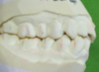 miyano-5
