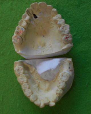 閉鎖歯列-3