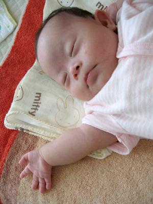 ダウン症優の新生児時期