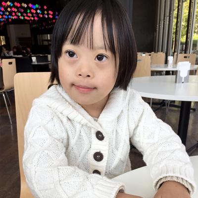 ダウン症の原因と特徴と寿命.jpg