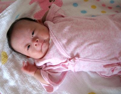 ダウン症新生児の特徴